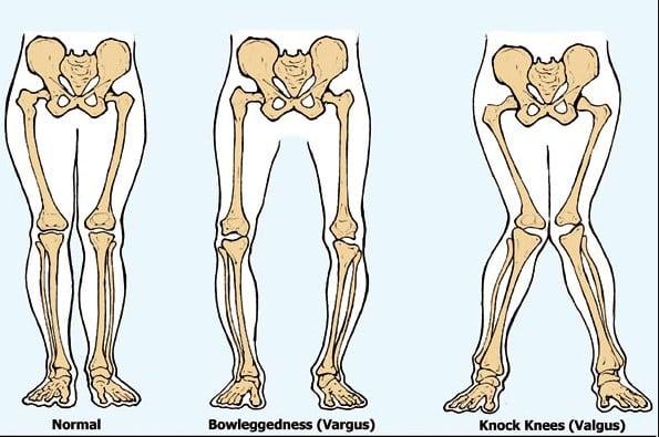 √ Penyakit Pada Sistem Gerak : Pengertian Beserta Penyebabnya